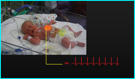Live feed display of infant with sensor highlight